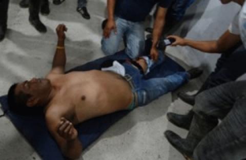 Herido campesino en el Putumayo