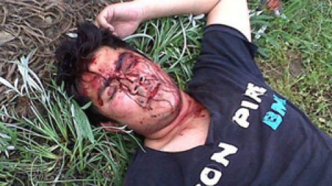 Graves violaciones a los derechos humanos por parte del régimen en varios departamentos
